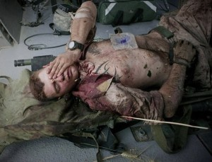 United States Marine Cpl. Burness Britt  lifted onto a medevac helicopter. Cpl. Britt was wounded in an IED strike in Helmand Province of southern Afghanistan. The wounded Leatherneck is facing a long recovery after a large piece of shrapnel cut a major artery on his neck. He suffered a stroke and became partially paralyzed.