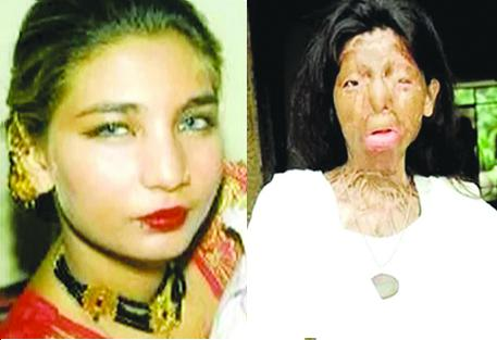 111111Fakhra-Yunus-before-acid-attack-Fakhra-Yunus-after-acid-attack