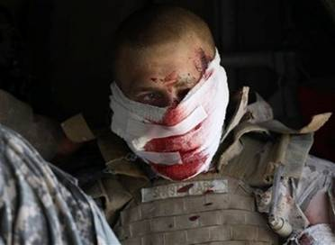 A wounded Marine leaves some of his blood in Helmand.
