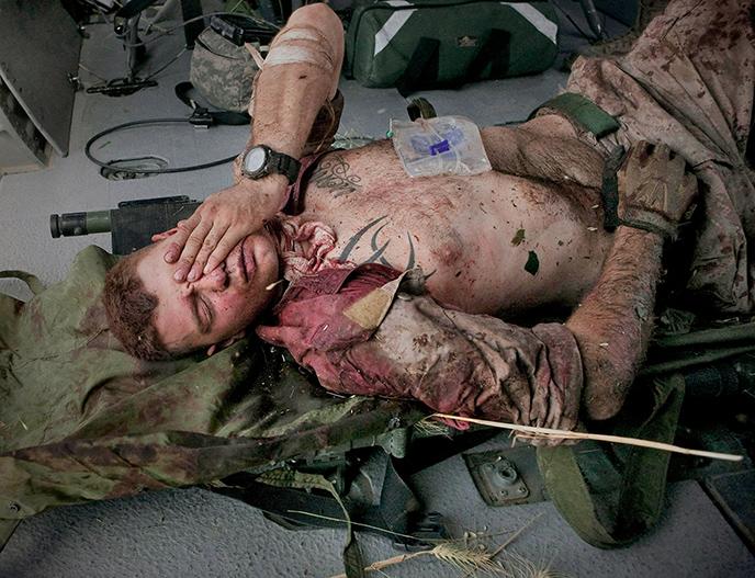 Wounded Marine awaiting MedEvac- Afghanistan.