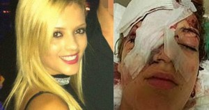 Another victim - a 15-year-old Danish girl beaten mercilessly by North African Muslims.