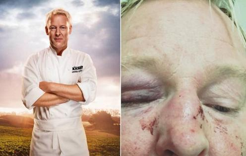 Swedish celeb beaten by Muslims for looking like Trump (Twitter).
